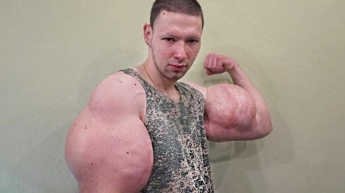 Russian Man Injects Chemicals in His Arm to Look Like the Hulk