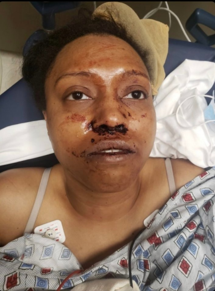 Image: Update: Chad Wheeler Facing 3 Criminal Charges Over Attack on Girlfriend Image #3